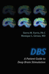 DBS A Patient Guide to Deep Brain Stimulation