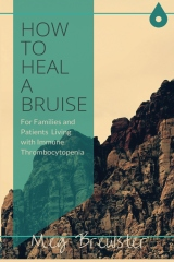 How to heal a bruise