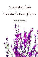 A Lupus Handbook: These Are The Faces Of Lupus